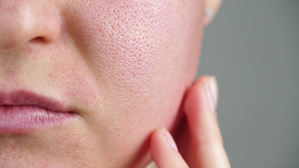 How to Get Rid of Large Pores on the Face